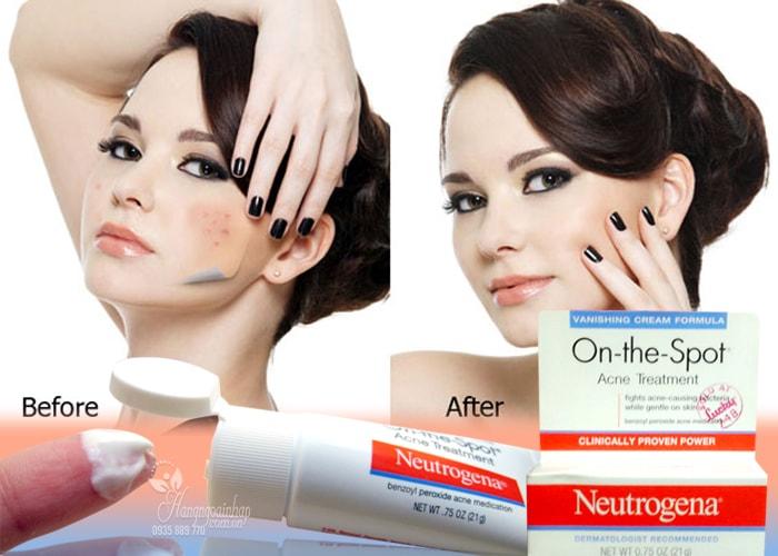 Kem-tri-mun-Neutrogena-On-The-Spot-Acne-Treatment-21g-cua-my-9