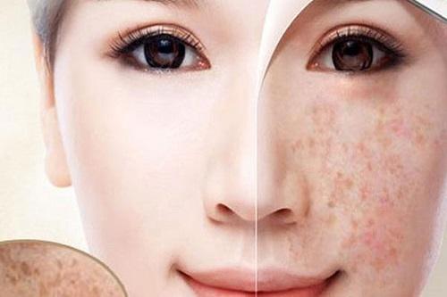 3 sản phẩm trị nám da tốt nhất bạn không thể bỏ qua