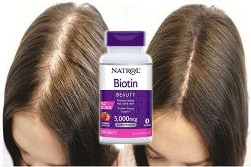 Viên ngậm Natrol Biotin Beauty 5000mcg review-5